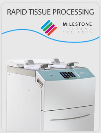 milestone-tissue